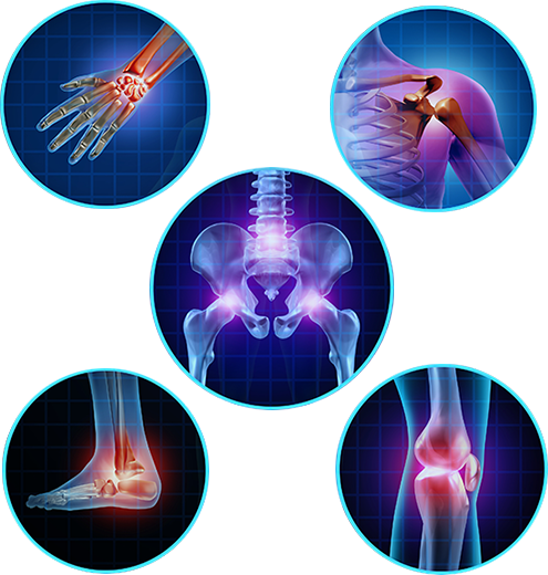 Effects of Arthritis