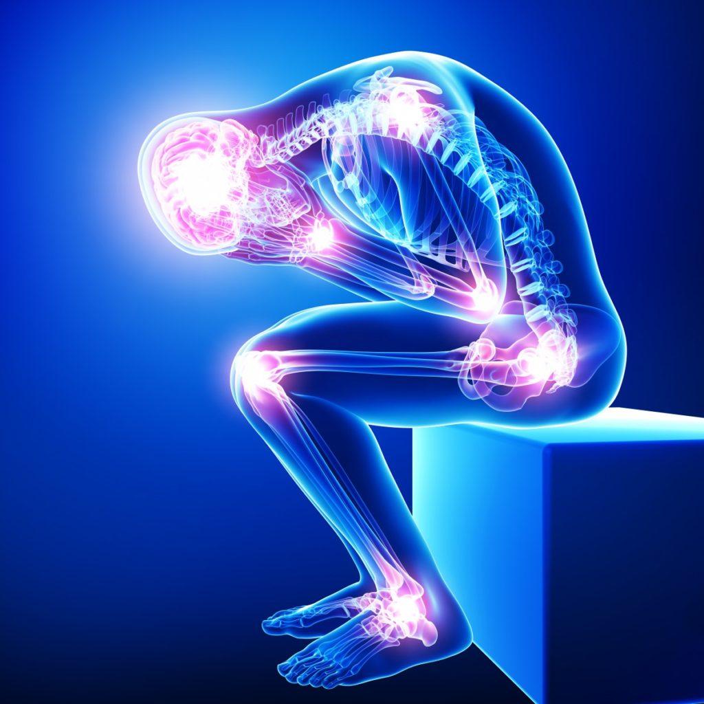 Fibromyalgia Pain All Over