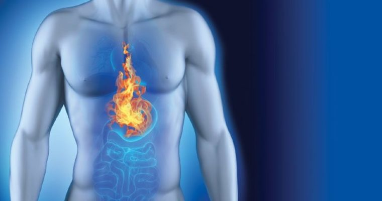 The Need for Formulating a Diet and Lifestyle Plan for Diminishing Acid Reflux