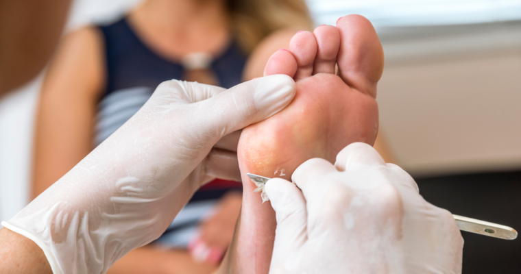 Why A Regular Visit to The Foot Clinic is Important?