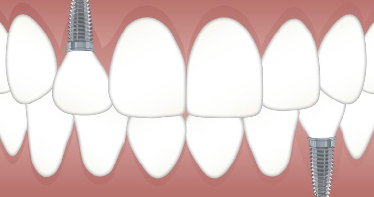 How to Find the Best Clinic for Dental Implants