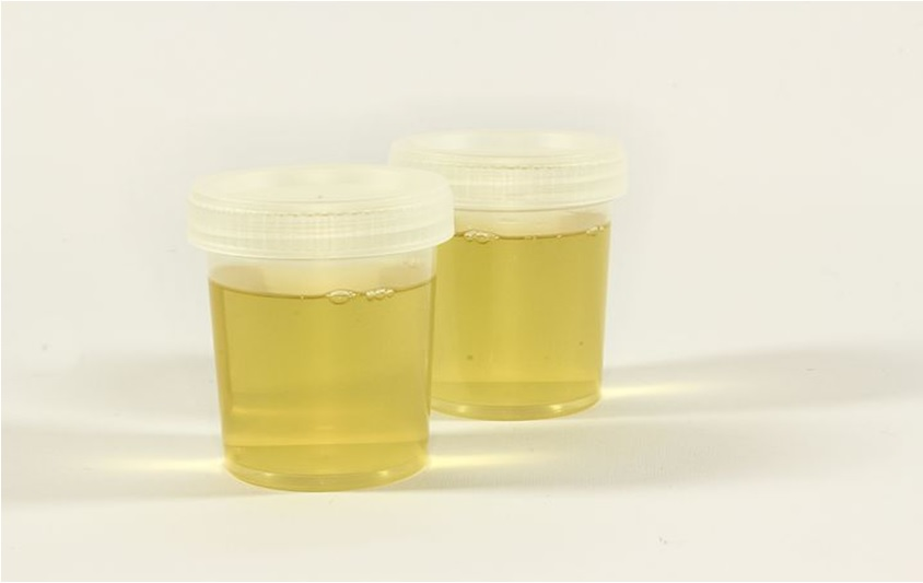 Urinalysis for Drug Testing