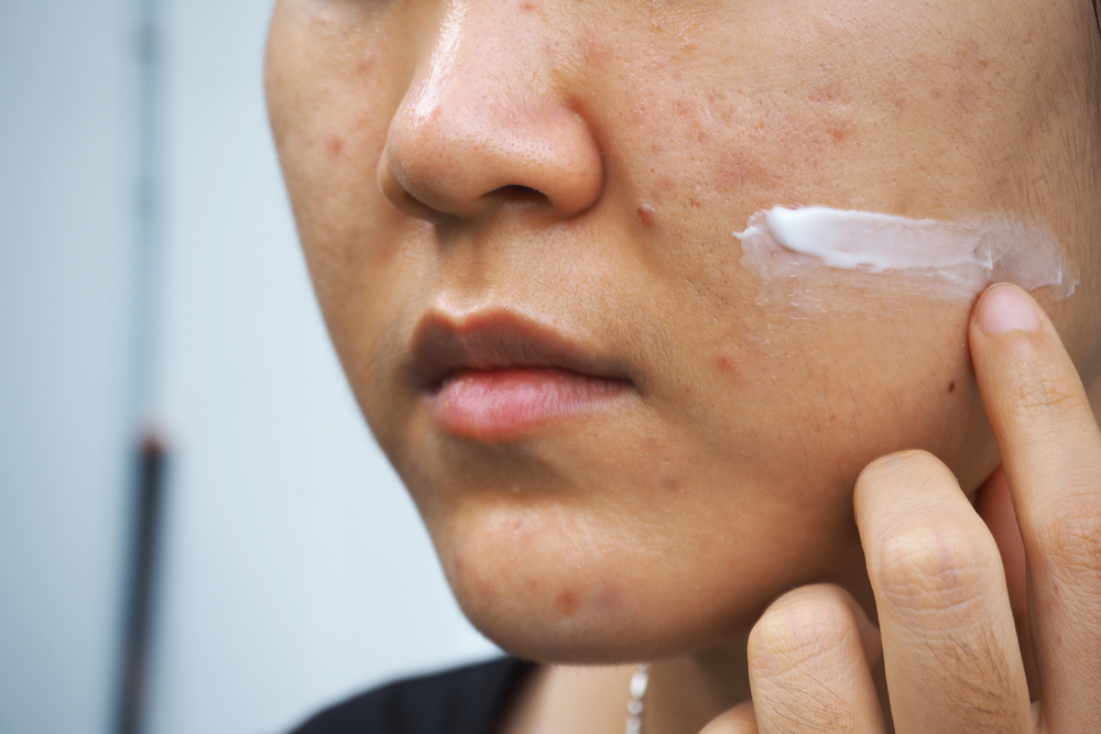 How to tell if you're Skin is Purging? – A Complete Guide