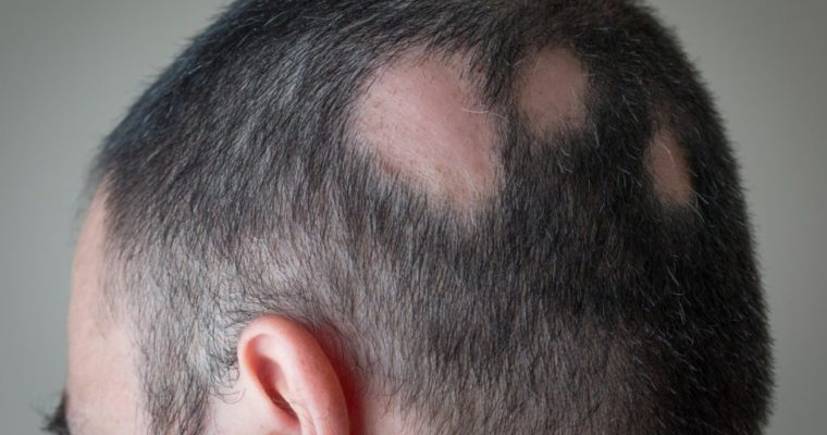 How Steroids Are Helpful in Alopecia Treatment?
